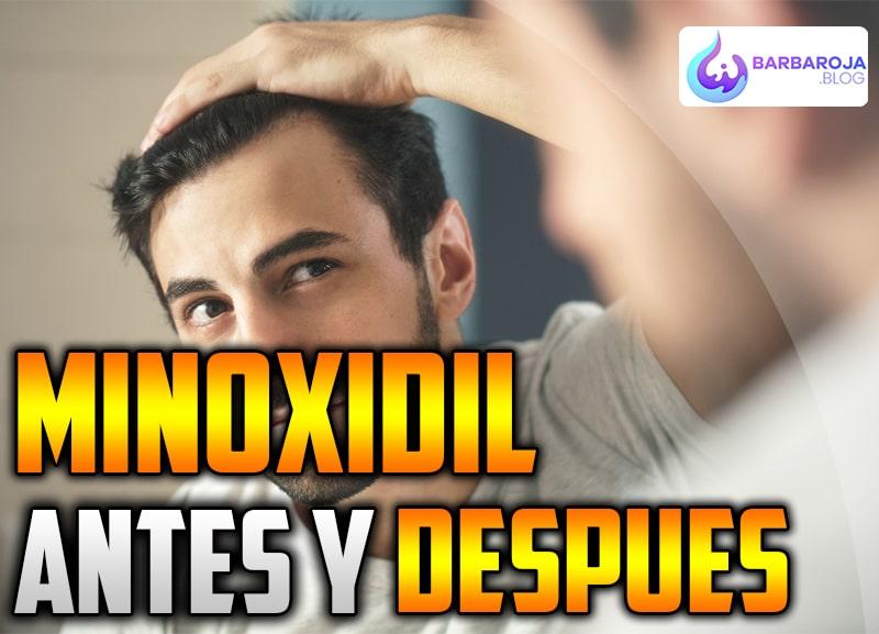 antes y despues minoxidil
