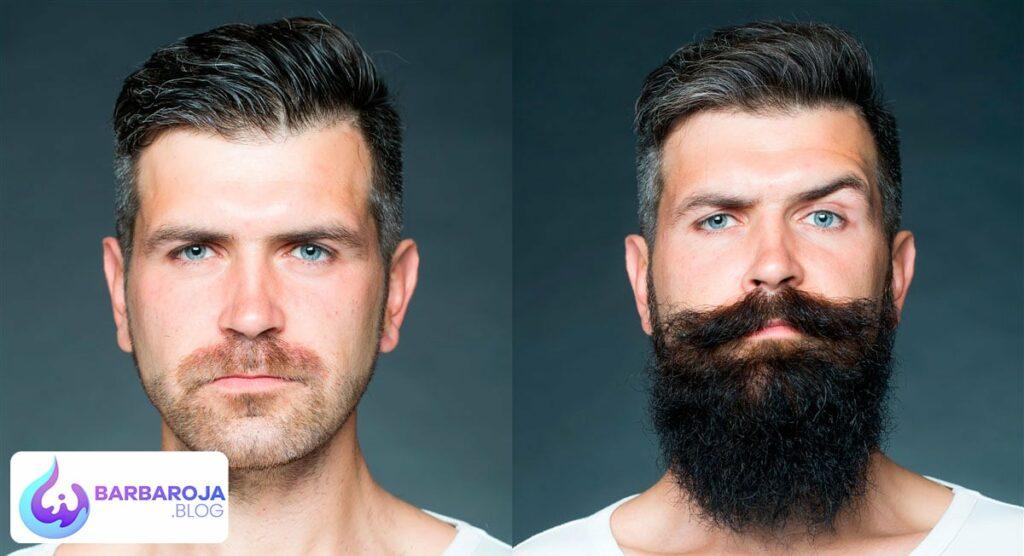 como tener barba