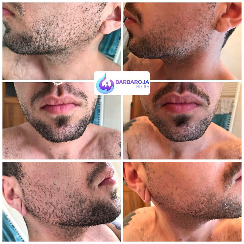 Resultados de Minoxidil 3 a 4 meses