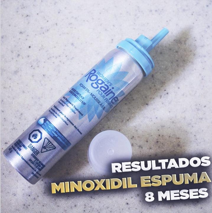 resultados minoxidil espuma mexico